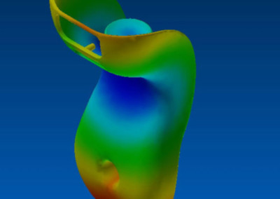 Injection Simulation